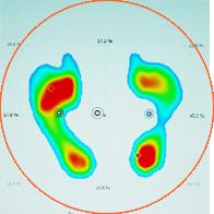 Evaluare biomecanica
