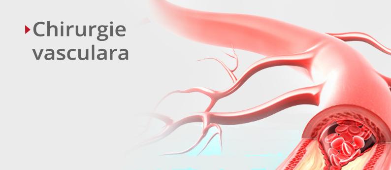 Chirurgie vasculara